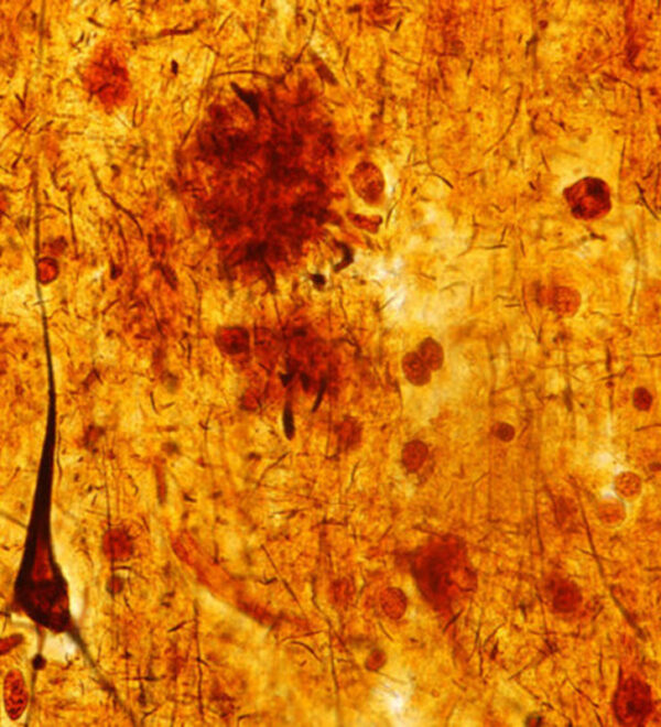 Brain tissue from person with dementia